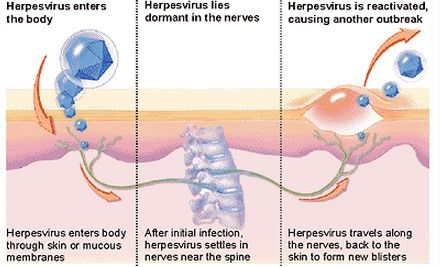 How Herpes Is Transmitted