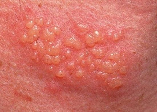 Pictures of female herpes blisters