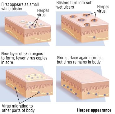 Herpes appearence