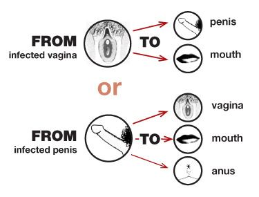 How Gonorrhea Is Transmitted?