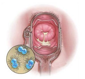 Image result for gonorrhoea women