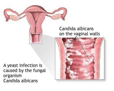 A yeast infection is caused by the fungal organism Candida albicans. Candida albicans on the vaginal walls image.