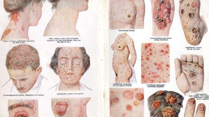 Images of patients with syphilis