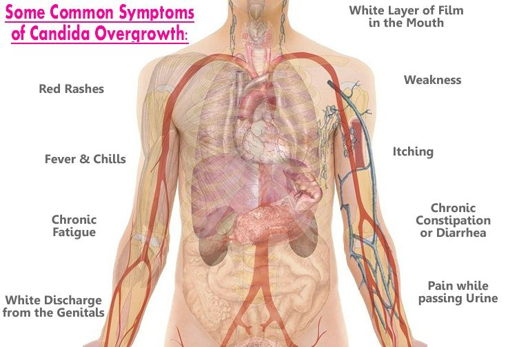 Common symptoms of candida overgrowth