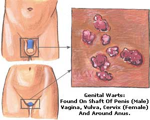 Genital Warts Male and Female