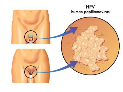 HPV (human papillomavirus) in men and women