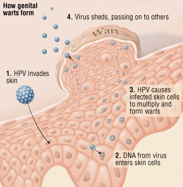How genital warts form