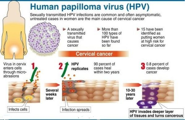 Human papilloma virus (HPV) and cancer