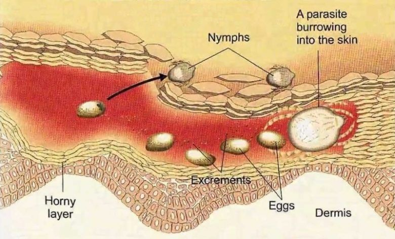 scabies symptoms \u0026 signs, causes, treatment, preventionwhat causes scabies